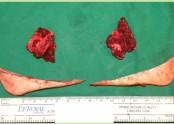근육뼈.jpg